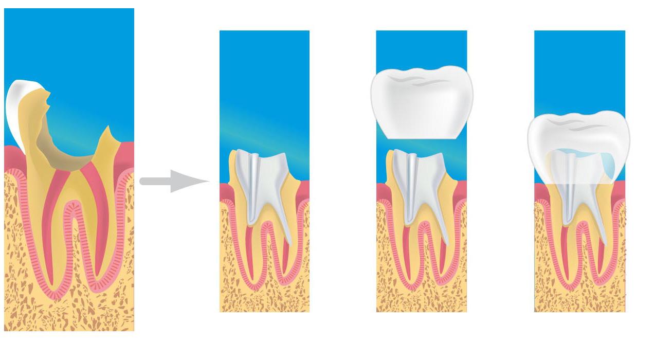 les proth ses dentaires cabinet dentaire 77 meaux 77100 dentiste cabinet dentaire aristide. Black Bedroom Furniture Sets. Home Design Ideas
